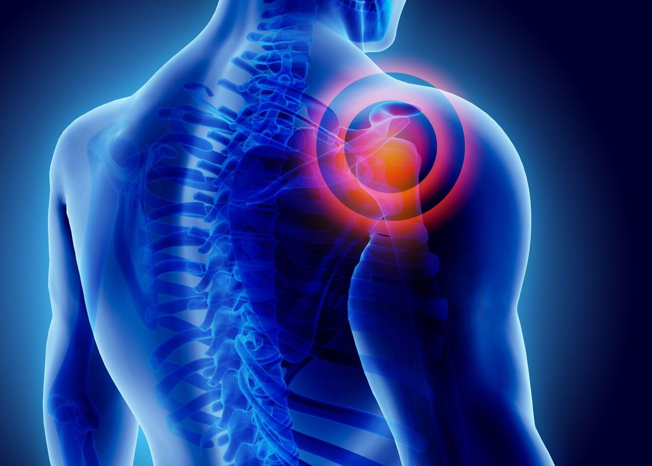 Eine Grafik eines Schmerzes bei der Schulter